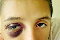 Dječak u školi pao i umalo izgubio oko
