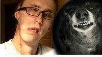 Josipu iz Slatine pas odgrizao pola lica: Trgao je sve sa mene… Doktori su se zgražali i čudili kako sam uopće preživio